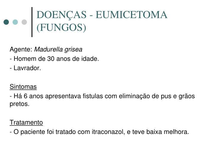 DOENÇAS - EUMICETOMA (FUNGOS)