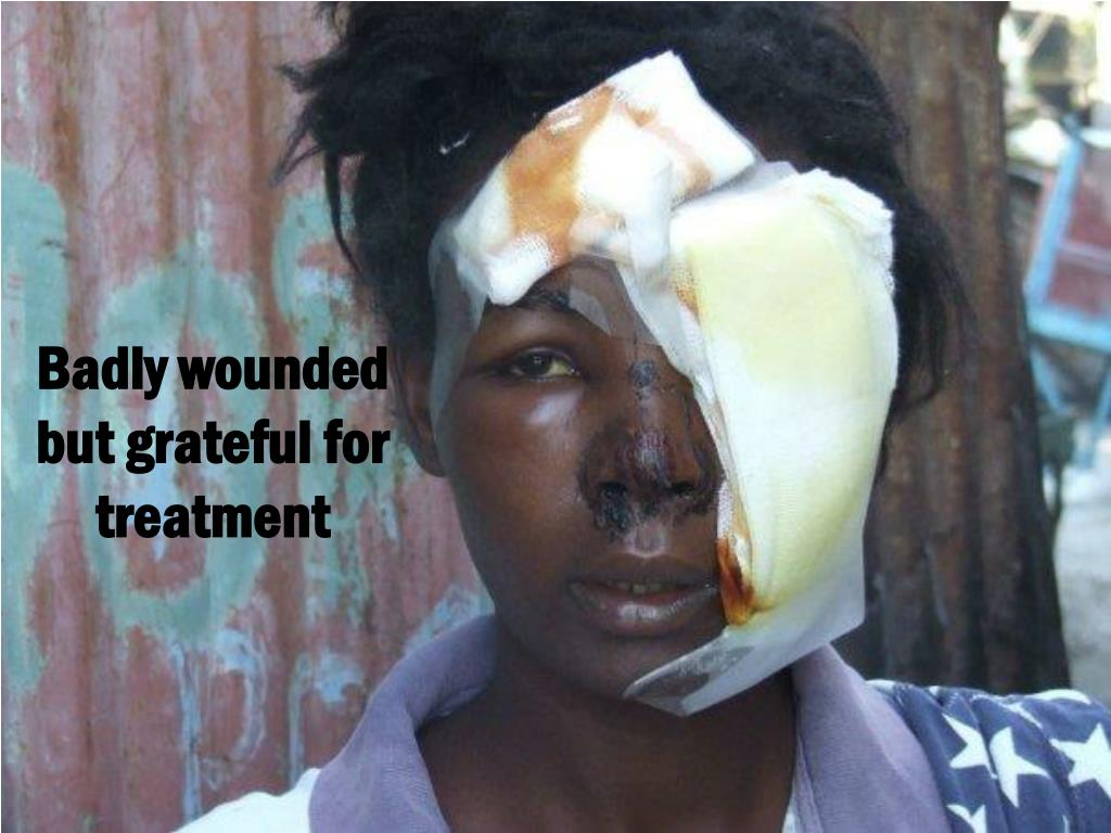 Badly wounded but grateful for treatment