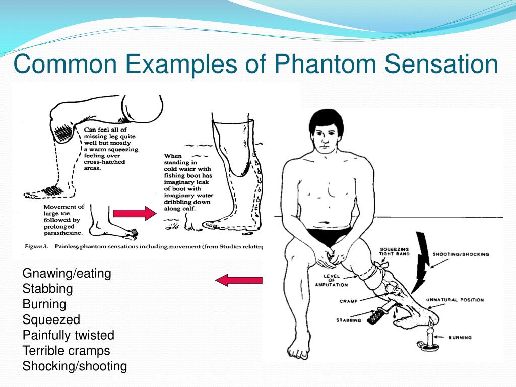 Common Examples of Phantom Sensation