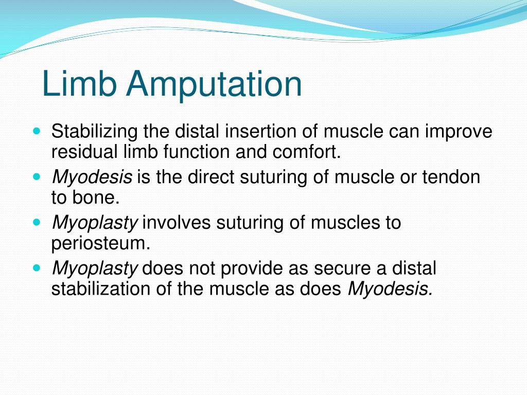 Limb Amputation