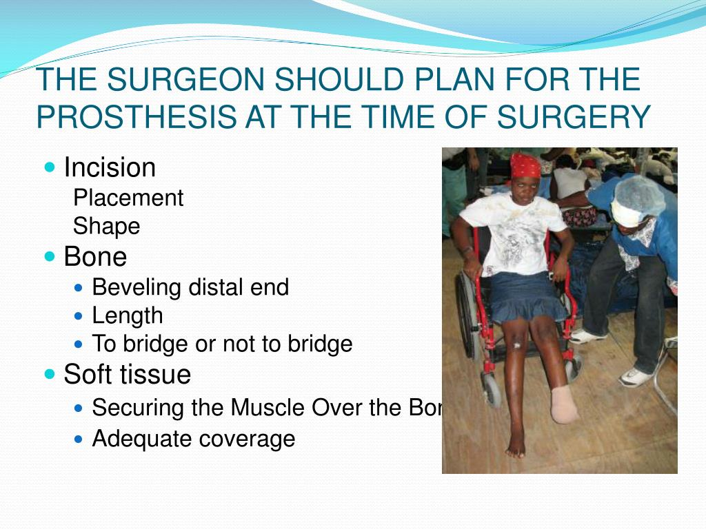 THE SURGEON SHOULD PLAN FOR THE PROSTHESIS AT THE TIME OF SURGERY