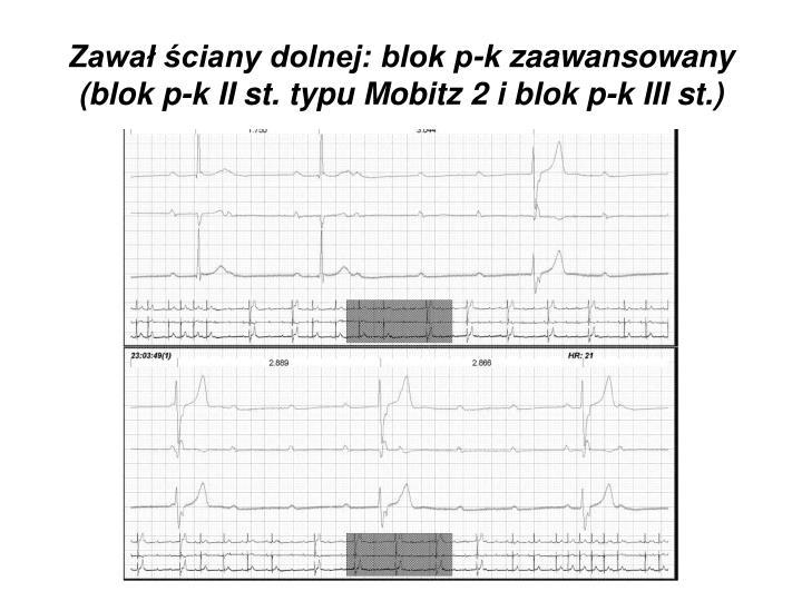 Zawał ściany dolnej: blok p-k zaawansowany