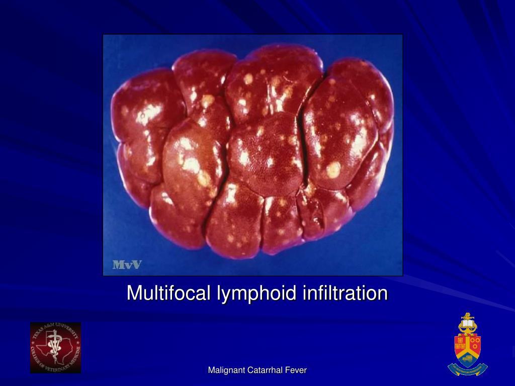 Multifocal lymphoid infiltration