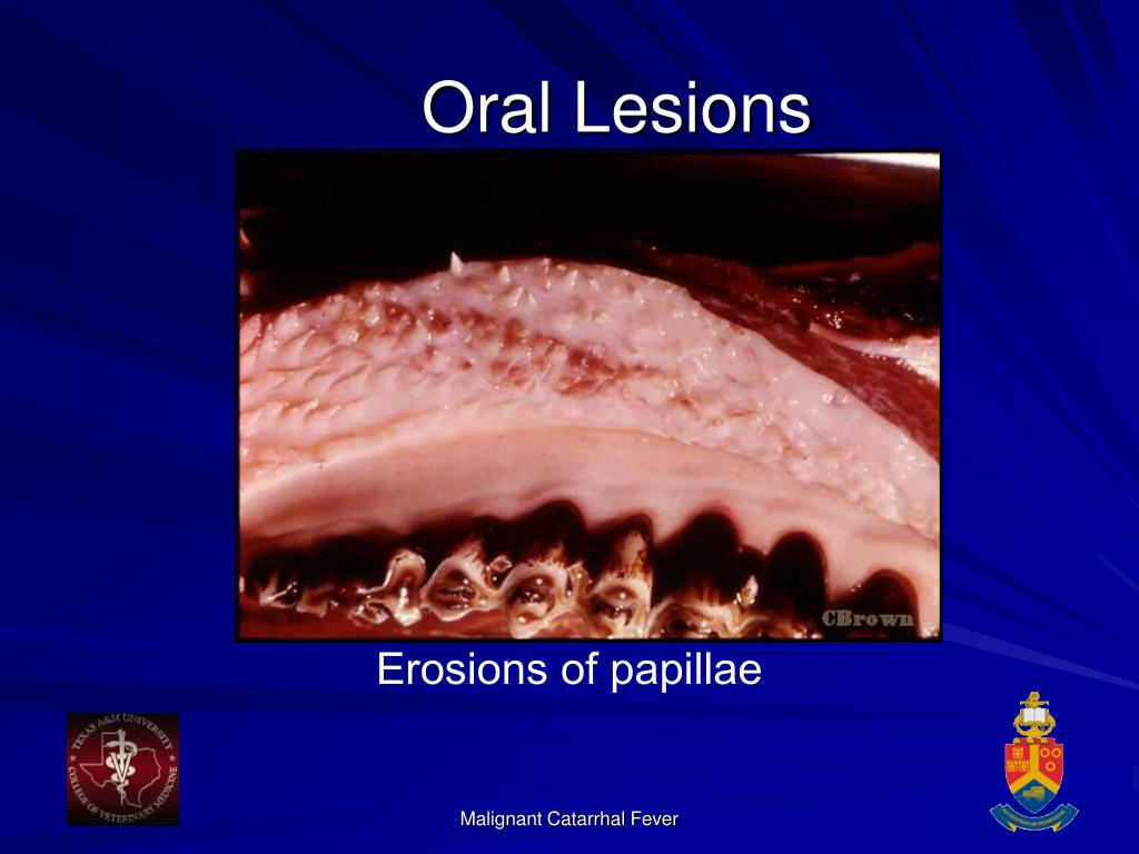 Oral Lesions
