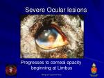 severe ocular lesions32
