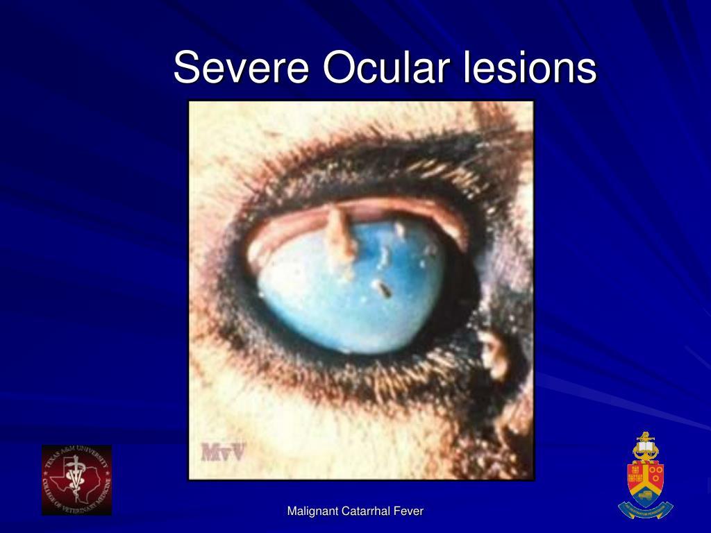 Severe Ocular lesions
