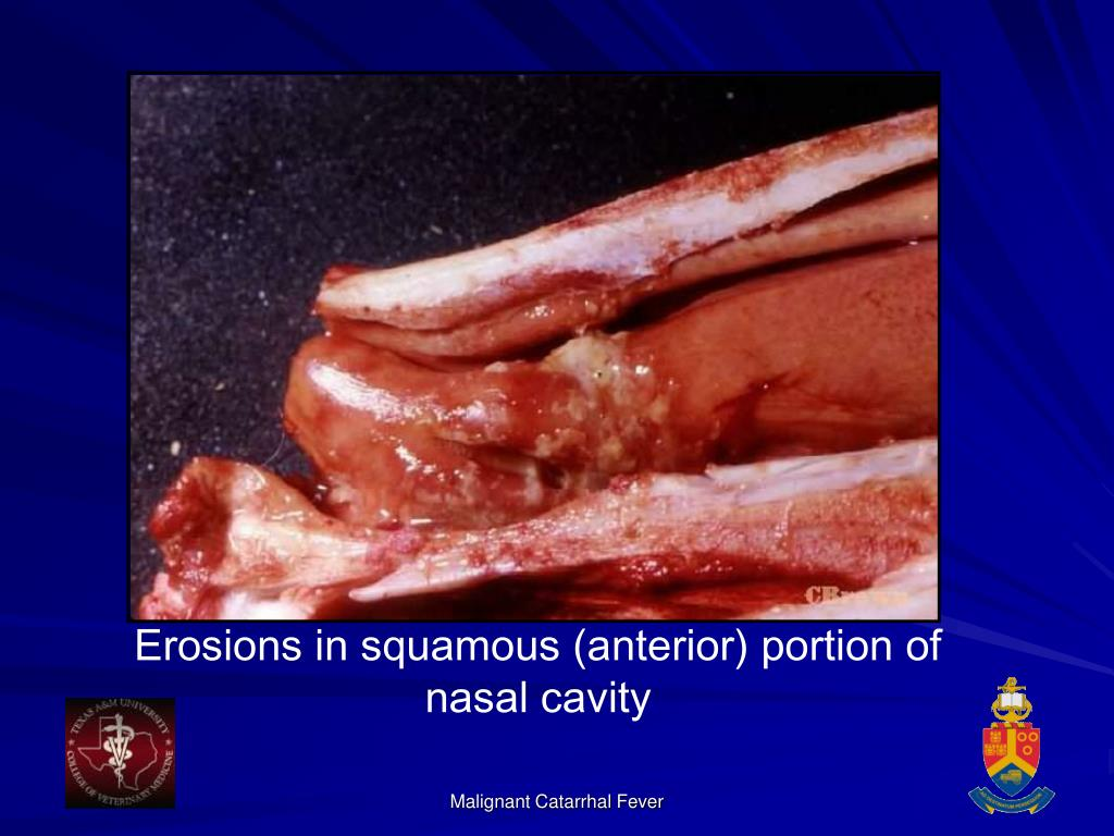 Erosions in squamous (anterior) portion of nasal cavity