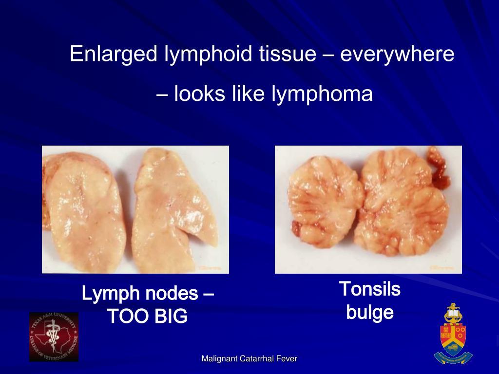 Enlarged lymphoid tissue – everywhere