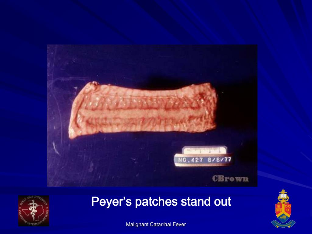 Peyer's patches stand out