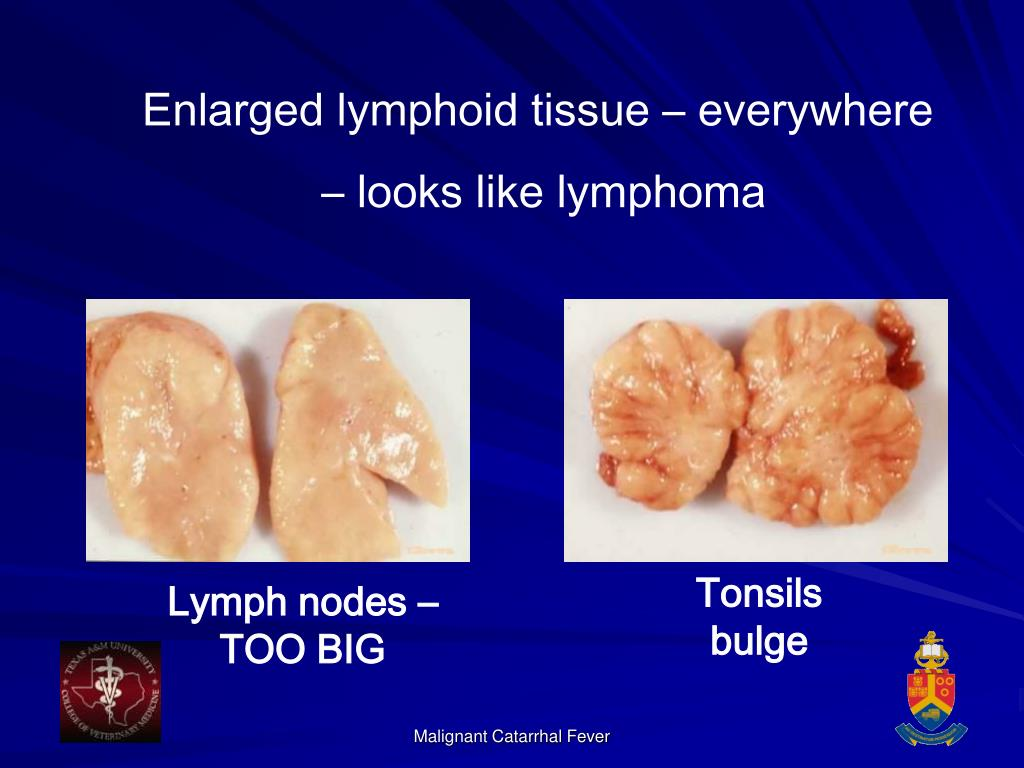Enlarged lymphoid tissue – everywhere