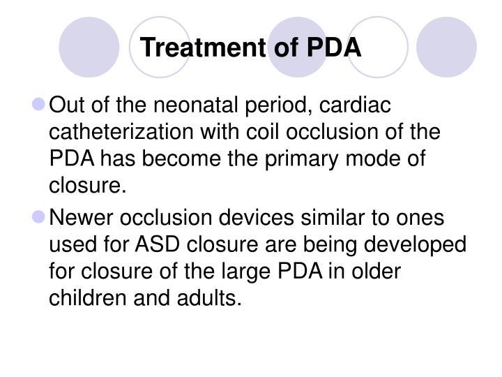 Treatment of PDA