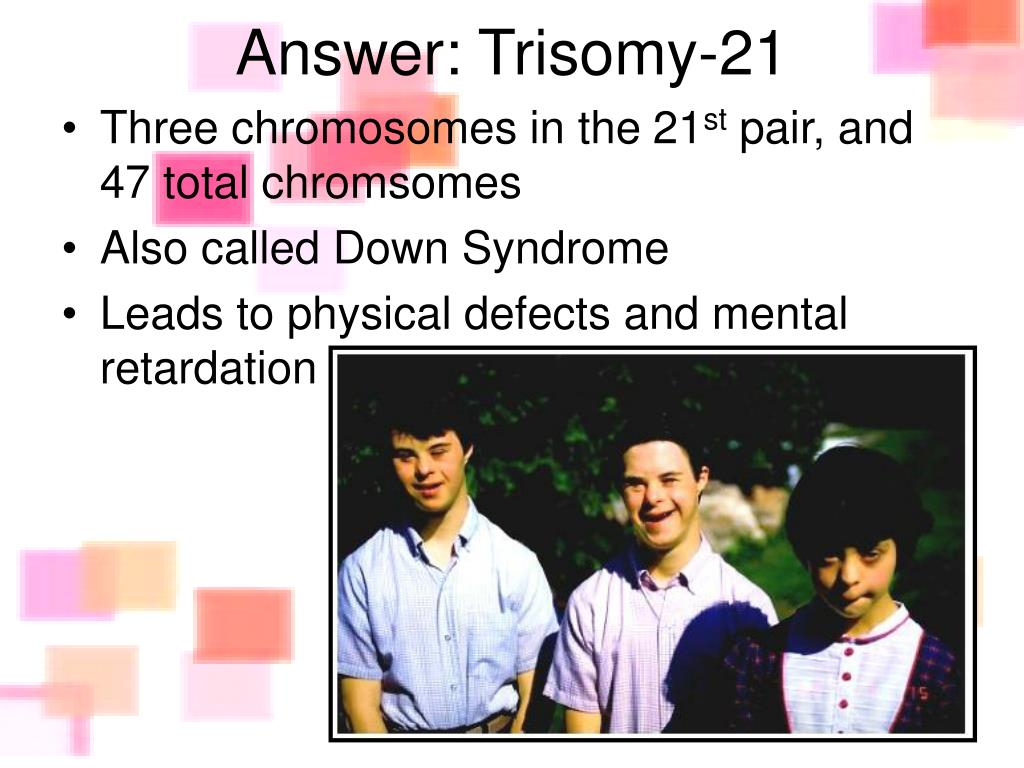 Answer: Trisomy-21