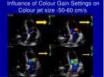 influence of colour gain settings on colour jet size 50 60 cm s