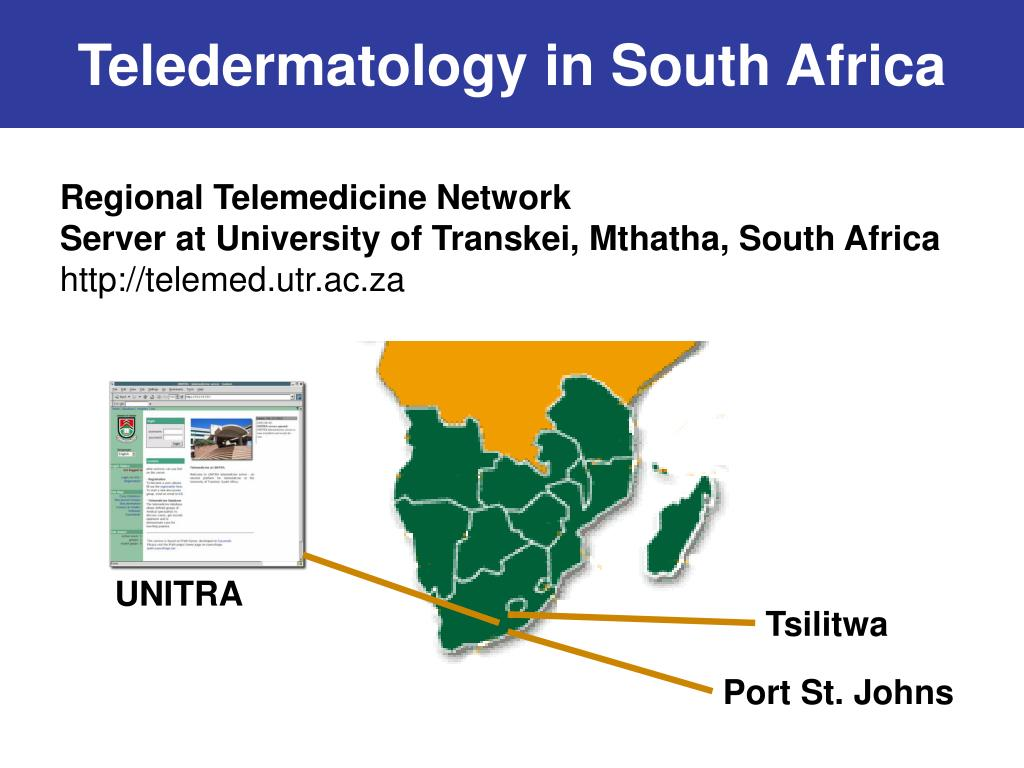 Teledermatology in South Africa