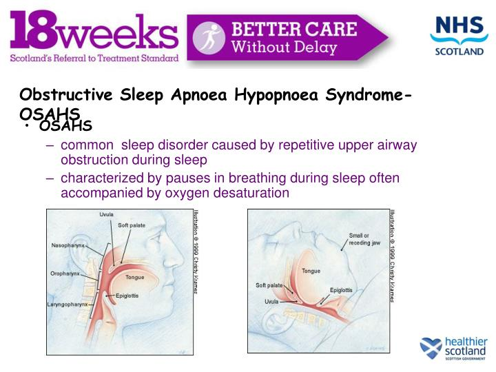 Obstructive Sleep Apnoea Hypopnoea Syndrome- OSAHS