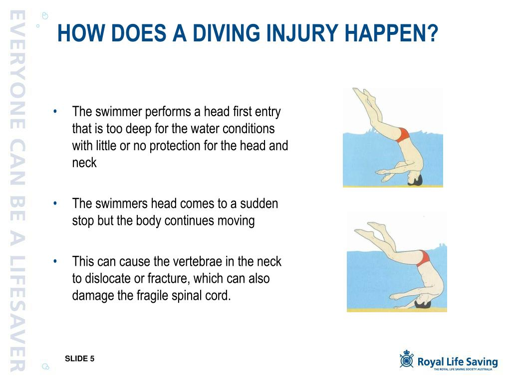 HOW DOES A DIVING INJURY HAPPEN?