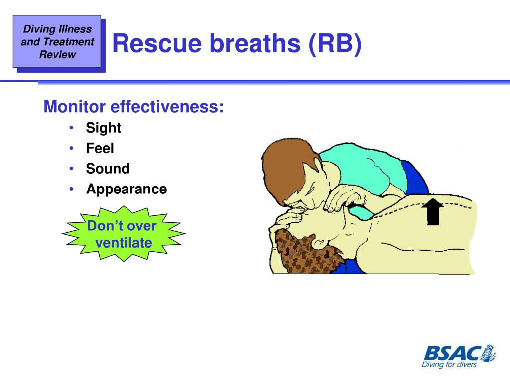 Rescue breaths (RB)