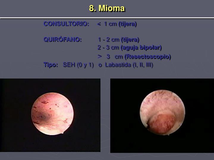 8. Mioma