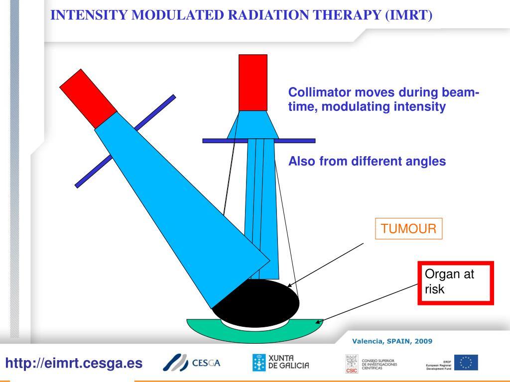 INTENSITY MODULATED RADIATION THERAPY (IMRT)