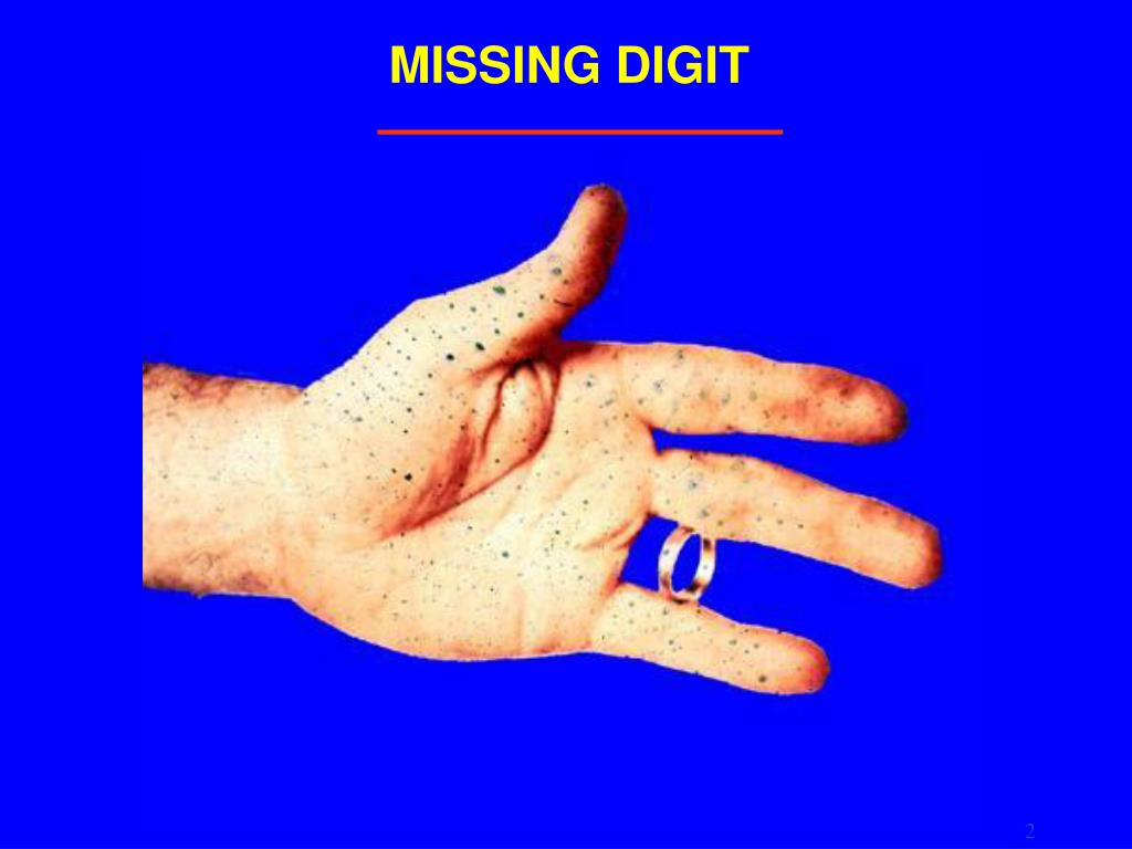 MISSING DIGIT