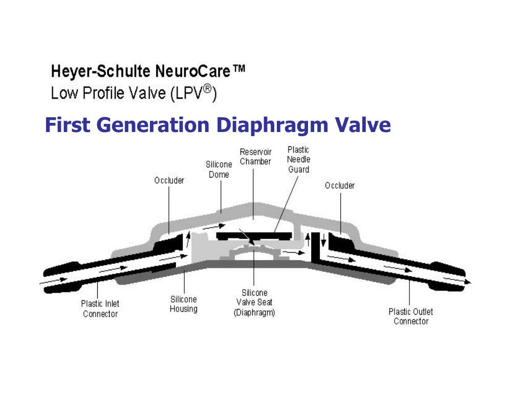 First Generation Diaphragm Valve