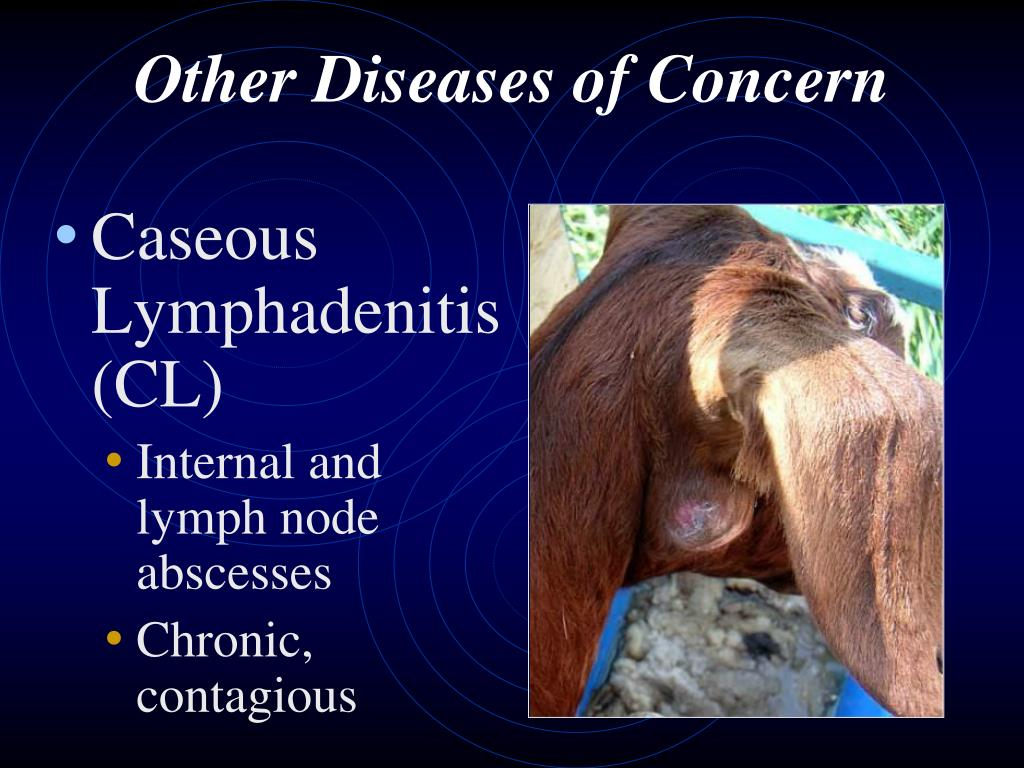 Other Diseases of Concern
