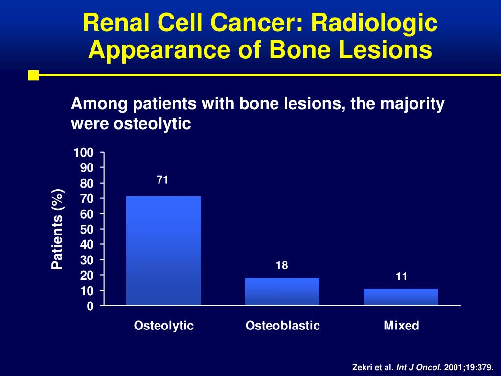 Renal Cell Cancer: Radiologic Appearance of Bone Lesions