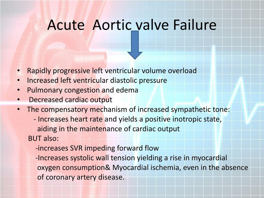Acute  Aortic valve Failure