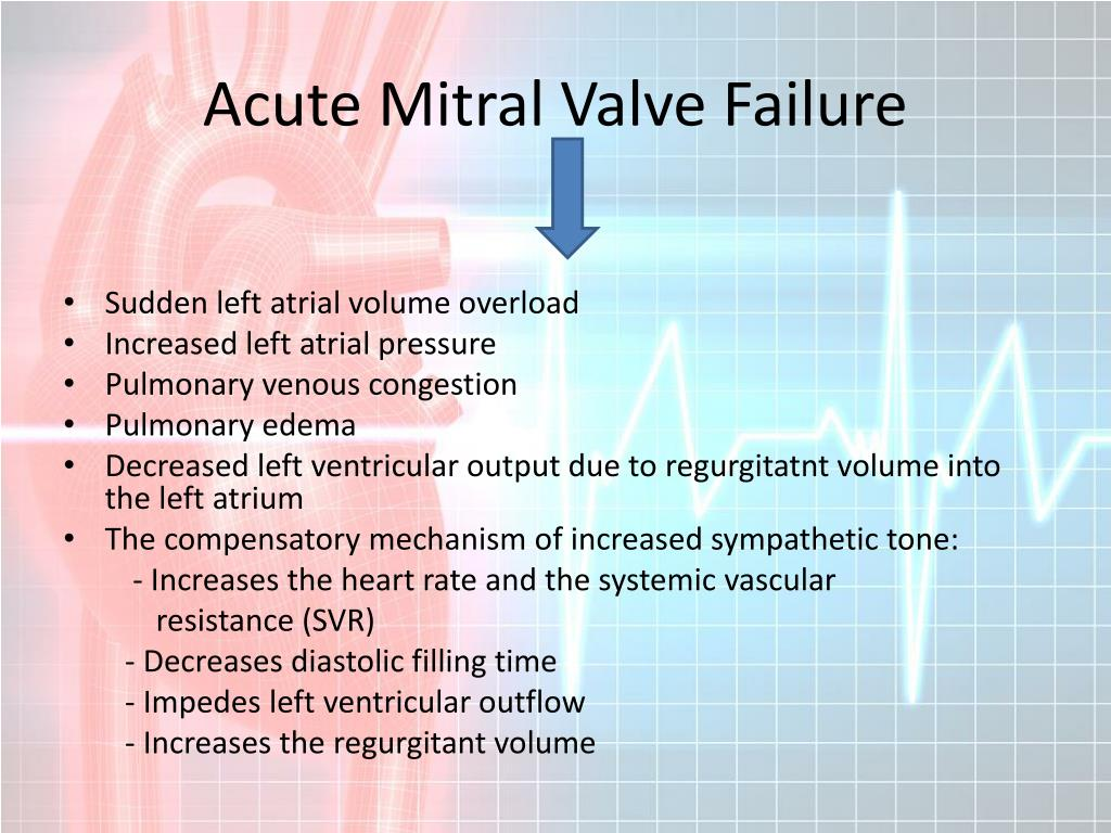 Acute Mitral Valve Failure