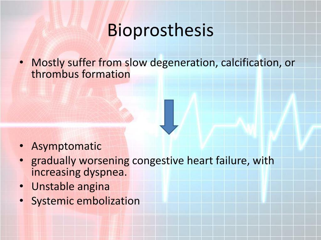 Bioprosthesis