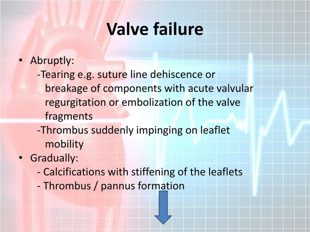 Valve failure