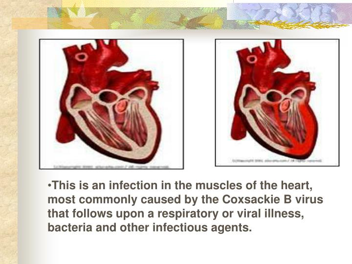 This is an infection in the muscles of the heart, most commonly caused by the Coxsackie B virus that follows upon a respiratory or viral illness, bacteria and other infectious agents.