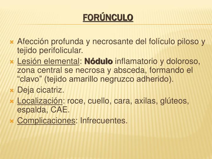 Afección profunda y necrosante del folículo piloso y tejido perifolicular.