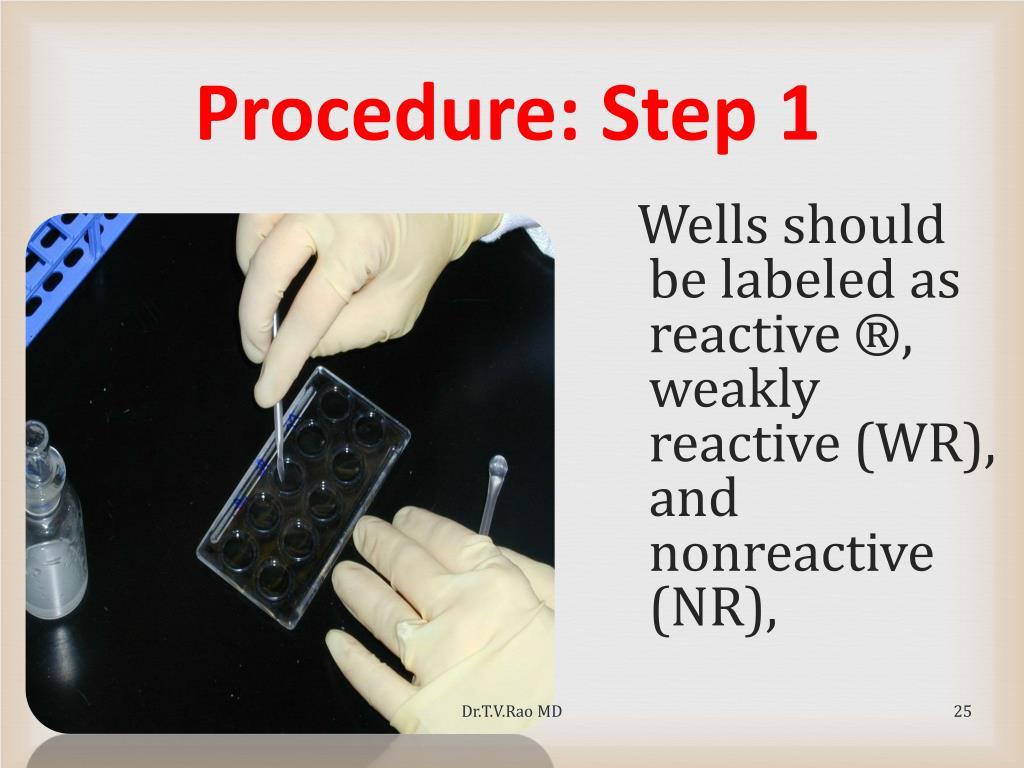 Procedure: Step 1
