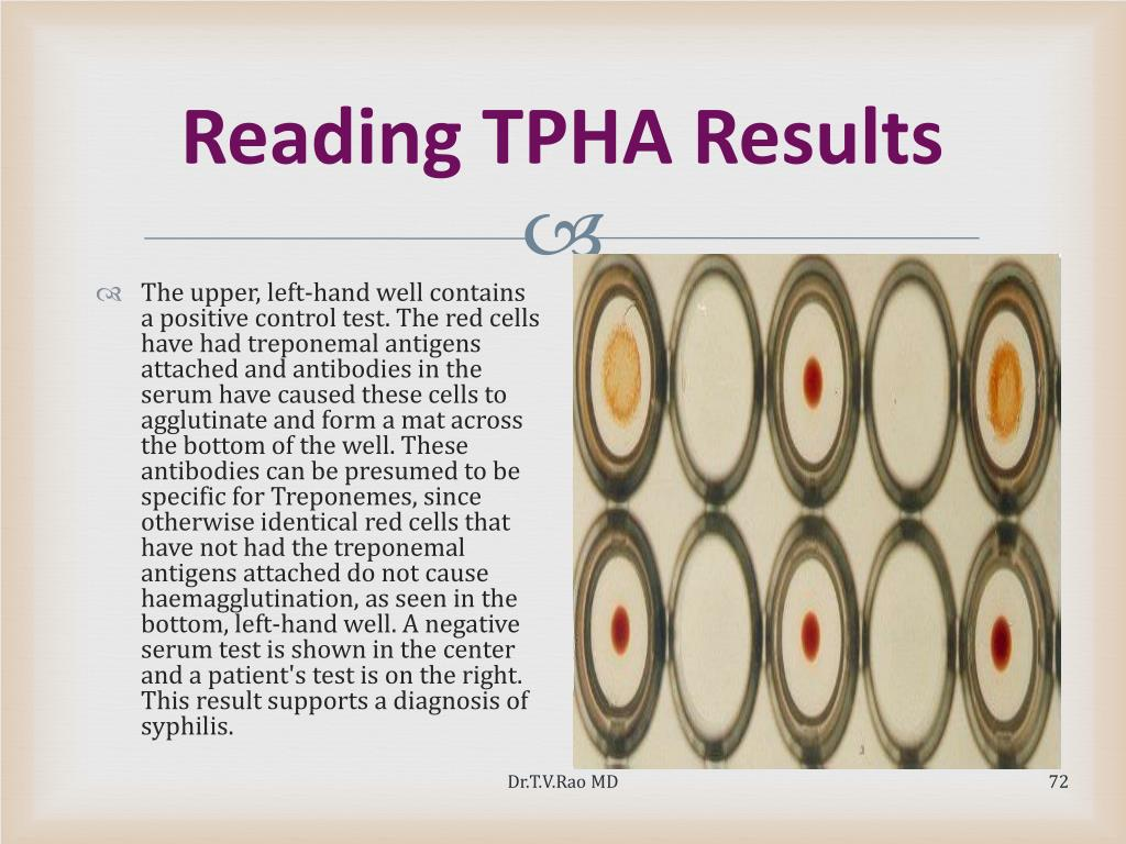Reading TPHA Results