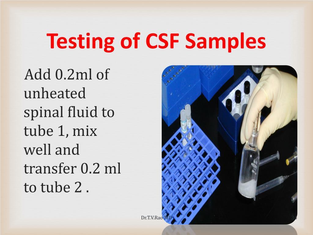Testing of CSF Samples