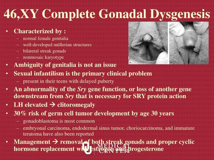 46,XY Complete Gonadal Dysgenesis
