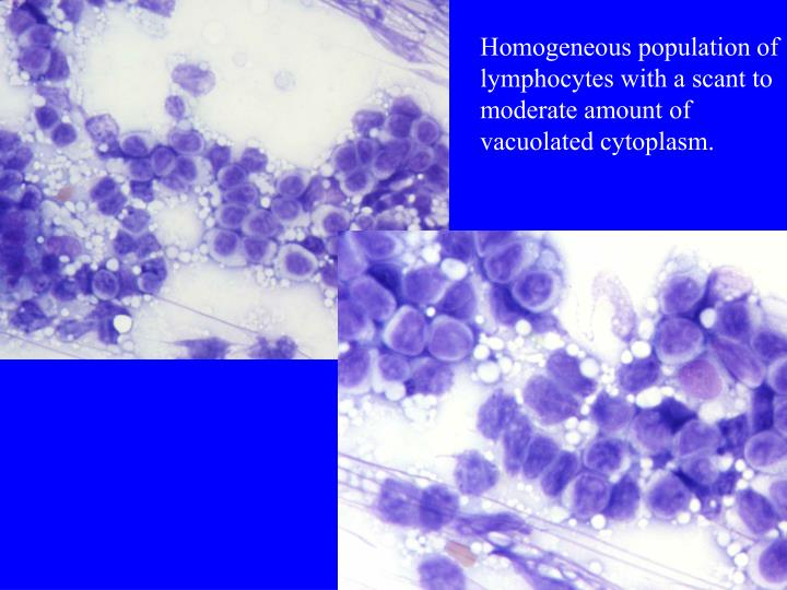 Homogeneous population of lymphocytes with a scant to moderate amount of vacuolated cytoplasm.