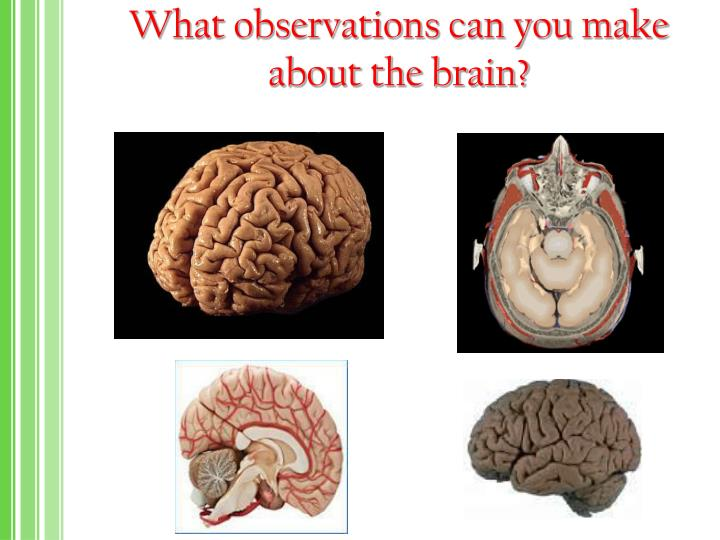 What observations can you make about the brain?