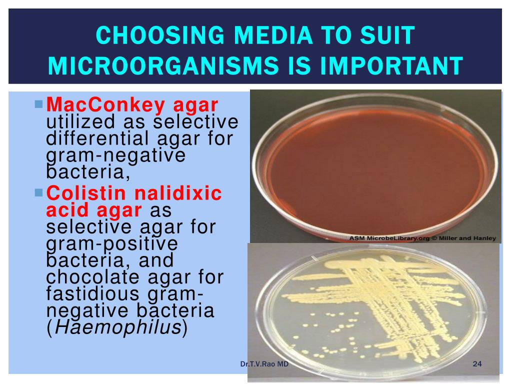 Choosing media to suit Microorganisms is important