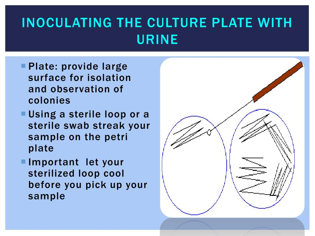 Inoculating the Culture plate with urine