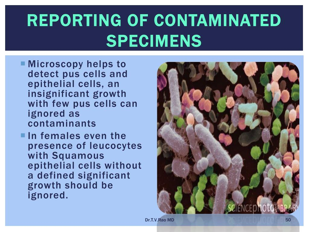 Reporting of Contaminated specimens