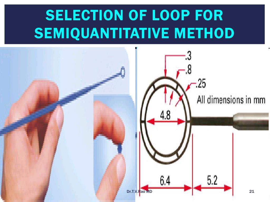 Selection of Loop for Semiquantitative Method