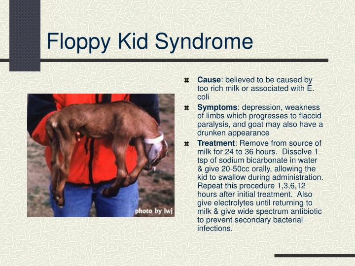 Floppy Kid Syndrome