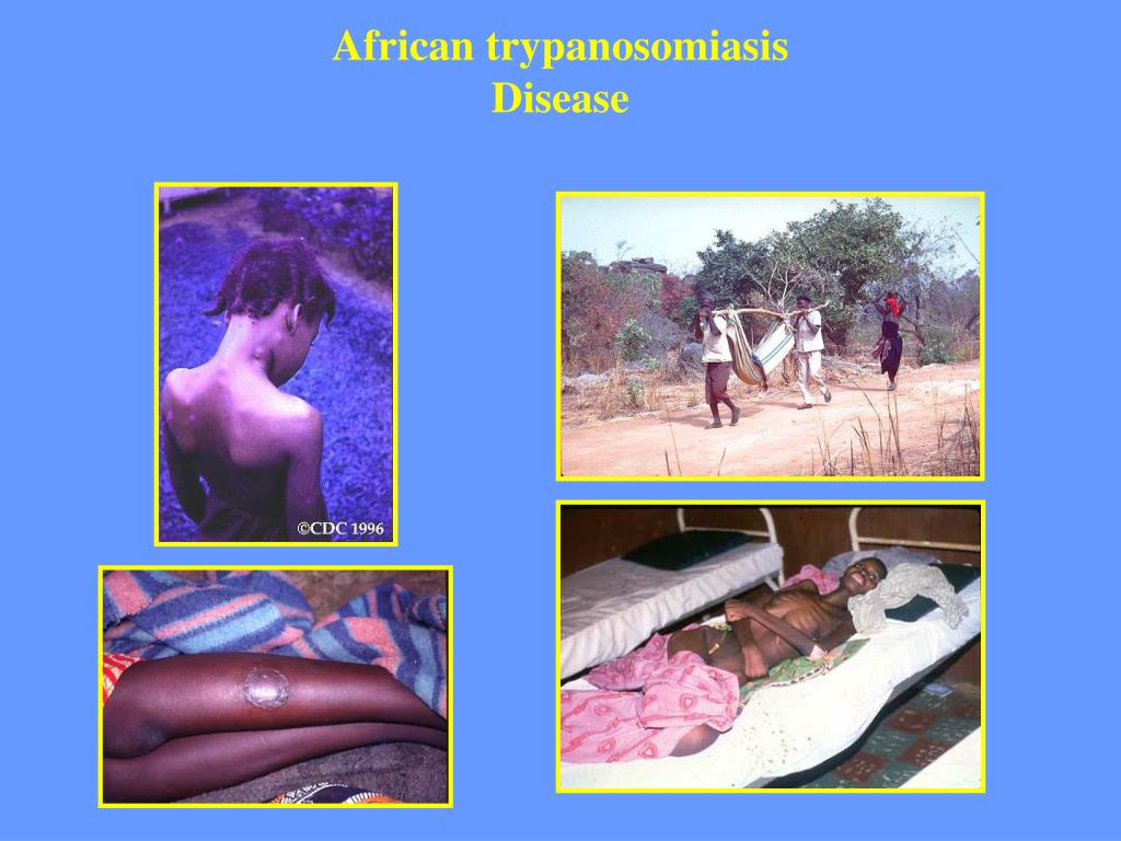 African trypanosomiasis