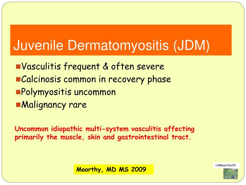 Juvenile Dermatomyositis (JDM)