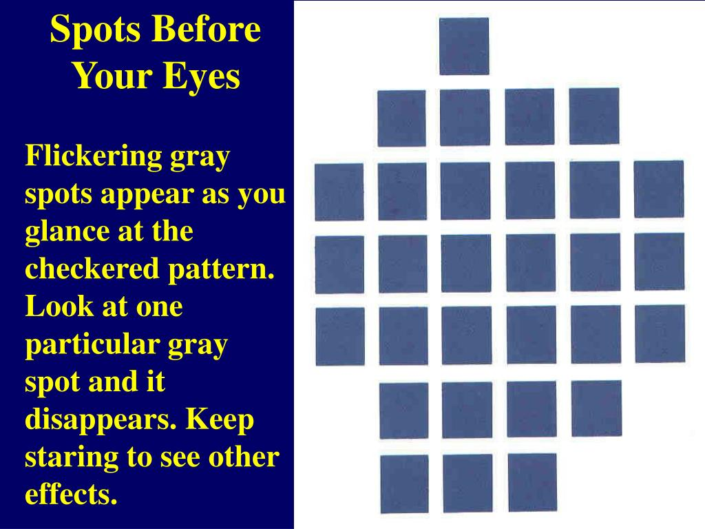 Spots Before Your Eyes