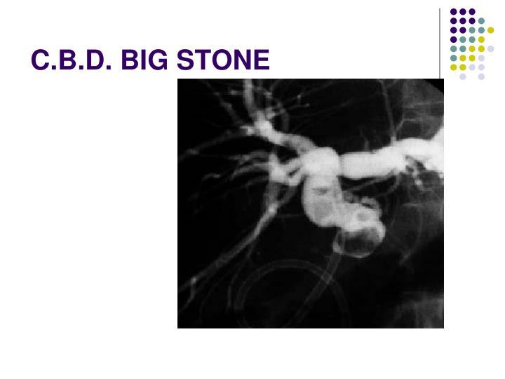 C.B.D. BIG STONE