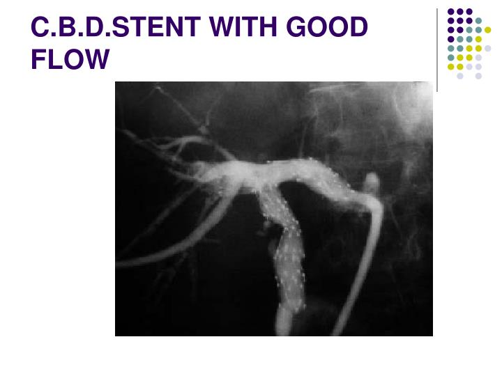 C.B.D.STENT WITH GOOD FLOW