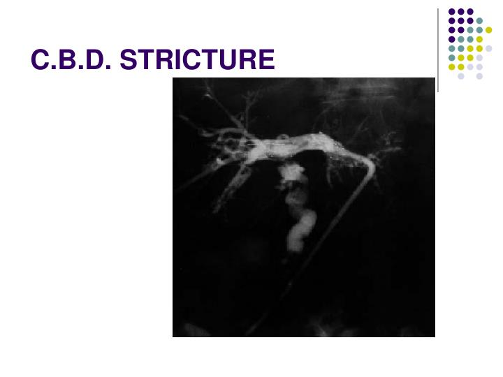C.B.D. STRICTURE